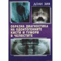 Образна диагностика на одонтогенните кисти и тумори в челюстите От Специализирана...
