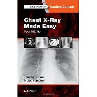 CHEST X-RAY MADE EASY, 4th Edition. (Jonathan Corne, Maruti Kumaran)
